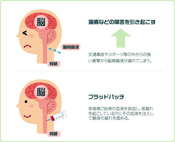 脳髄液のメカニズム